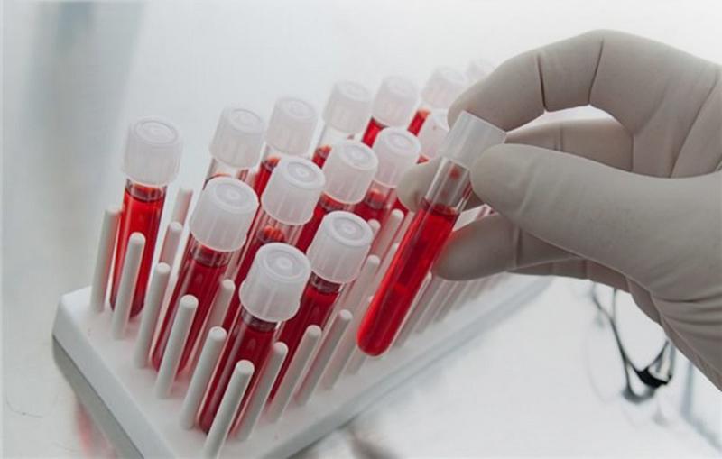 Пройти тест наВИЧ: вОренбург прибыл вагон Министерства здравоохранения РФ