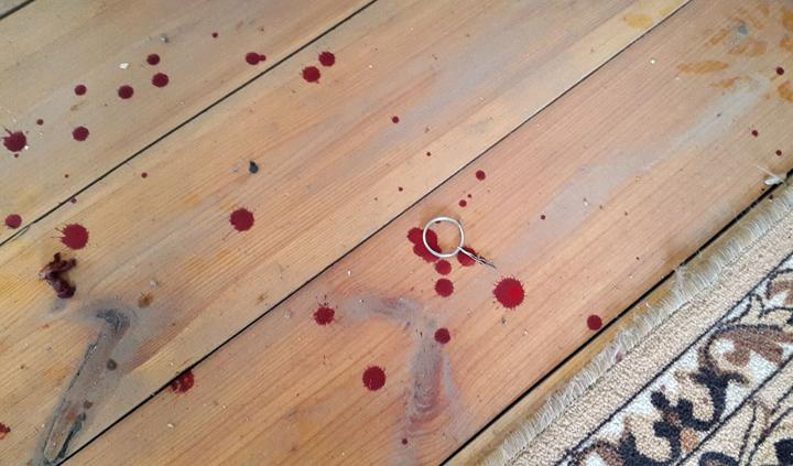 Жителю Оренбурга оторвало руку, когда онразбирал гранату